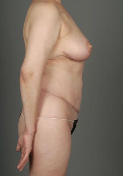 Deep Inferior Epigastric Artery Perforator Flap Gallery - Patient 4002549 - Image 10