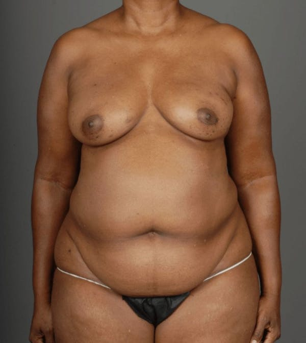 Deep Inferior Epigastric Artery Perforator Flap Gallery - Patient 4006303 - Image 1