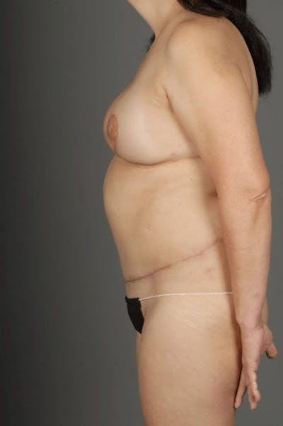 Deep Inferior Epigastric Artery Perforator Flap Gallery - Patient 4006305 - Image 8