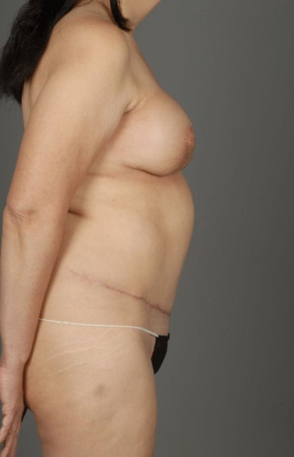 Deep Inferior Epigastric Artery Perforator Flap Gallery - Patient 4006305 - Image 10