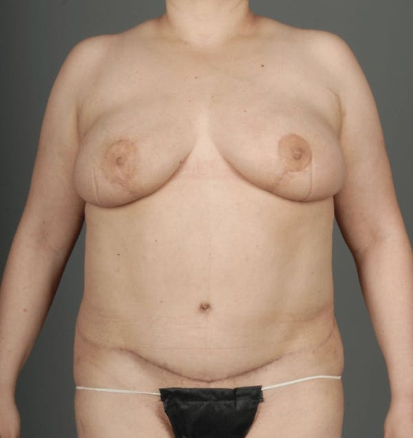 Deep Inferior Epigastric Artery Perforator Flap Gallery - Patient 4005860 - Image 2