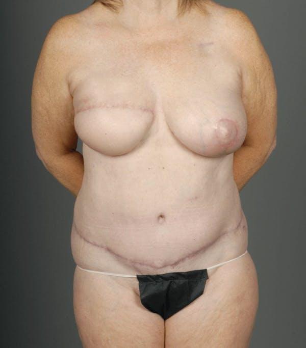 Deep Inferior Epigastric Artery Perforator Flap Gallery - Patient 4006384 - Image 2