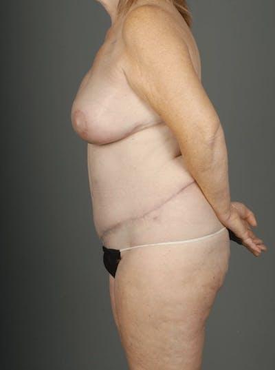 Deep Inferior Epigastric Artery Perforator Flap Gallery - Patient 4006384 - Image 8