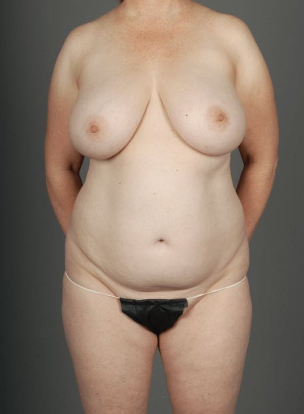 SHaEP Flap Gallery - Patient 4006536 - Image 1