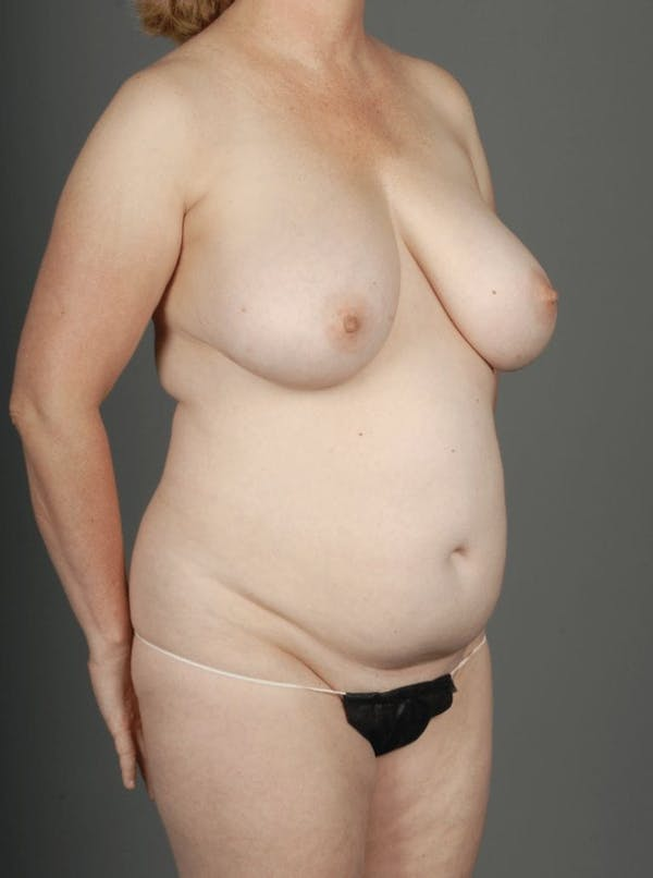 SHaEP Flap Gallery - Patient 4006536 - Image 3