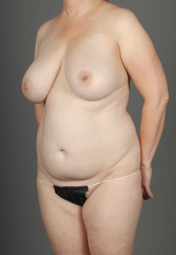 SHaEP Flap Gallery - Patient 4006536 - Image 5