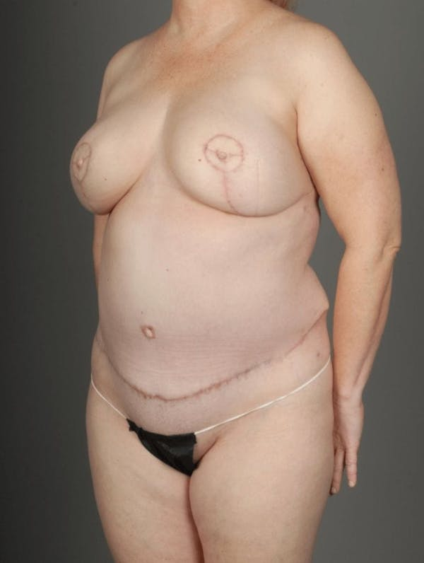 SHaEP Flap Gallery - Patient 4006536 - Image 6