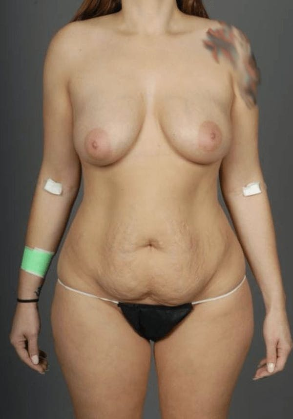 SHaEP Flap Gallery - Patient 4006633 - Image 3