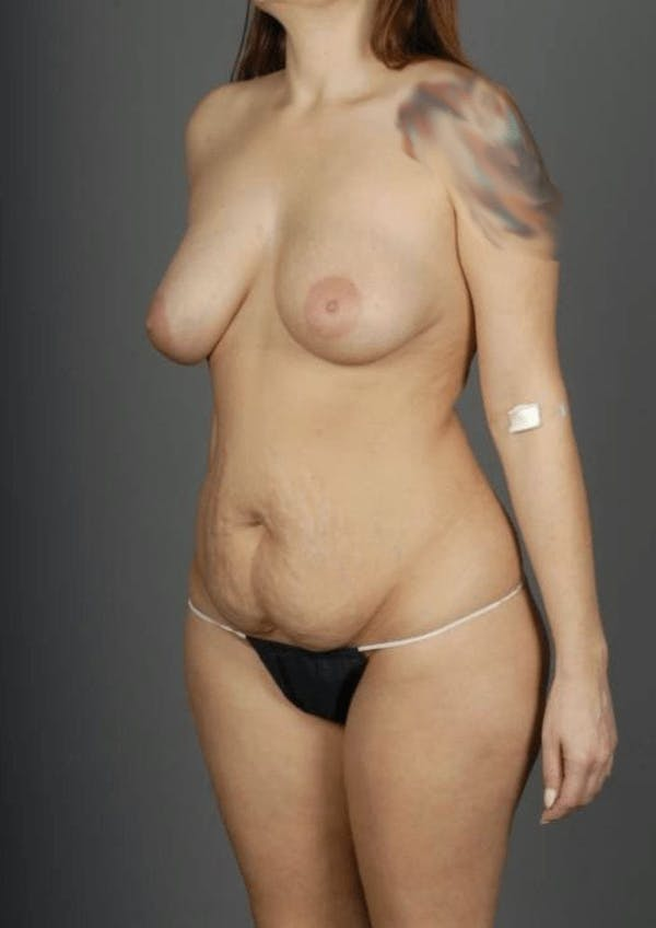 SHaEP Flap Gallery - Patient 4006633 - Image 5
