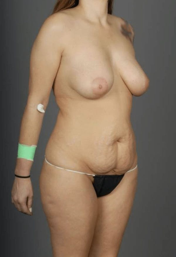 SHaEP Flap Gallery - Patient 4006633 - Image 7