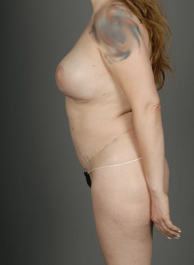 SHaEP Flap Gallery - Patient 4006633 - Image 10