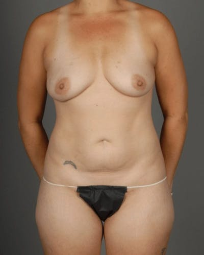 Hybrid Gallery - Patient 3688751 - Image 1