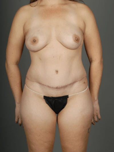 Hybrid Gallery - Patient 3688751 - Image 2