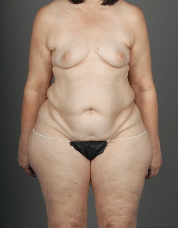 Lateral Thigh Perforator Flap Gallery - Patient 3688752 - Image 1