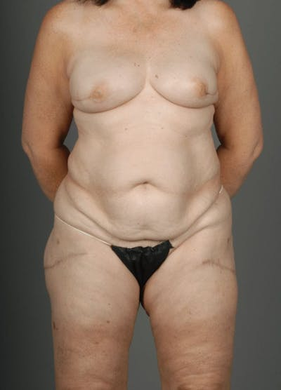 Lateral Thigh Perforator Flap Gallery - Patient 3688752 - Image 2