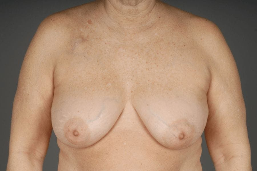 Oncoplastic Reconstruction Results
