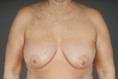 Oncoplastic Reconstruction Gallery - Patient 3688754 - Image 1
