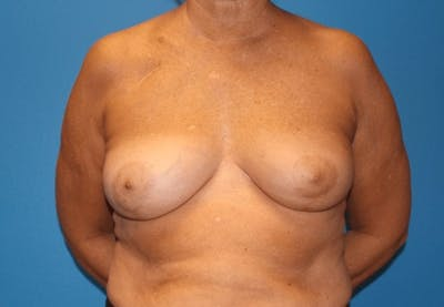 Oncoplastic Reconstruction Gallery - Patient 3688754 - Image 2