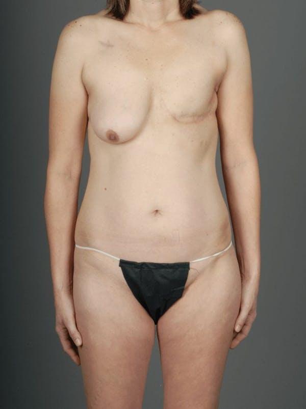 SIEA/DIEP Flap Gallery - Patient 3688753 - Image 1