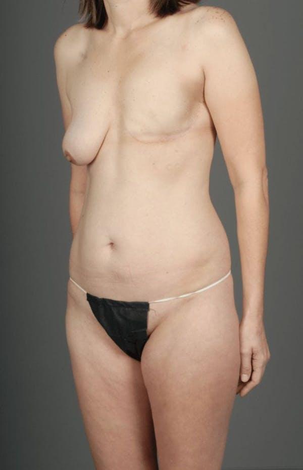 SIEA/DIEP Flap Gallery - Patient 3688753 - Image 3