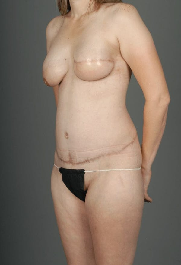 SIEA/DIEP Flap Gallery - Patient 3688753 - Image 4
