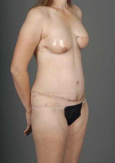 SIEA/DIEP Flap Gallery - Patient 3688753 - Image 6