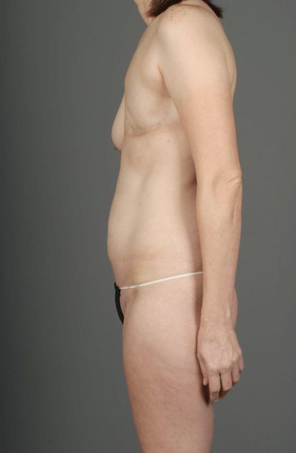 SIEA/DIEP Flap Gallery - Patient 3688753 - Image 7