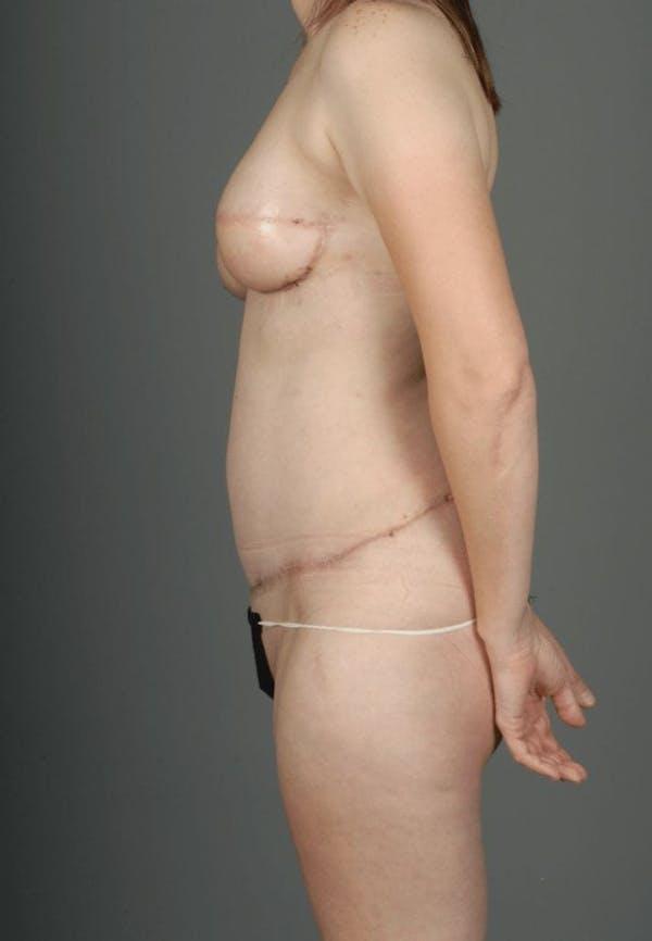 SIEA/DIEP Flap Gallery - Patient 3688753 - Image 8