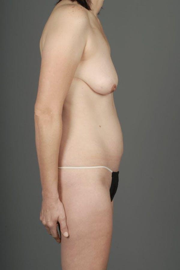 SIEA/DIEP Flap Gallery - Patient 3688753 - Image 9