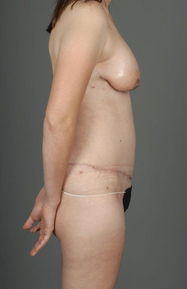 SIEA/DIEP Flap Gallery - Patient 3688753 - Image 10