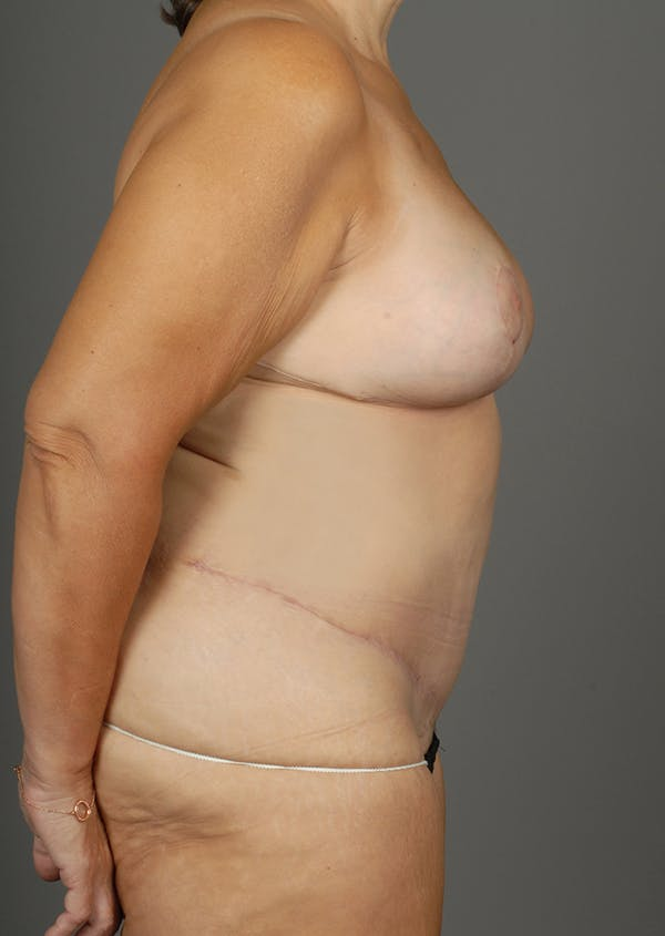 Deep Inferior Epigastric Artery Perforator Flap Gallery - Patient 4006302 - Image 10