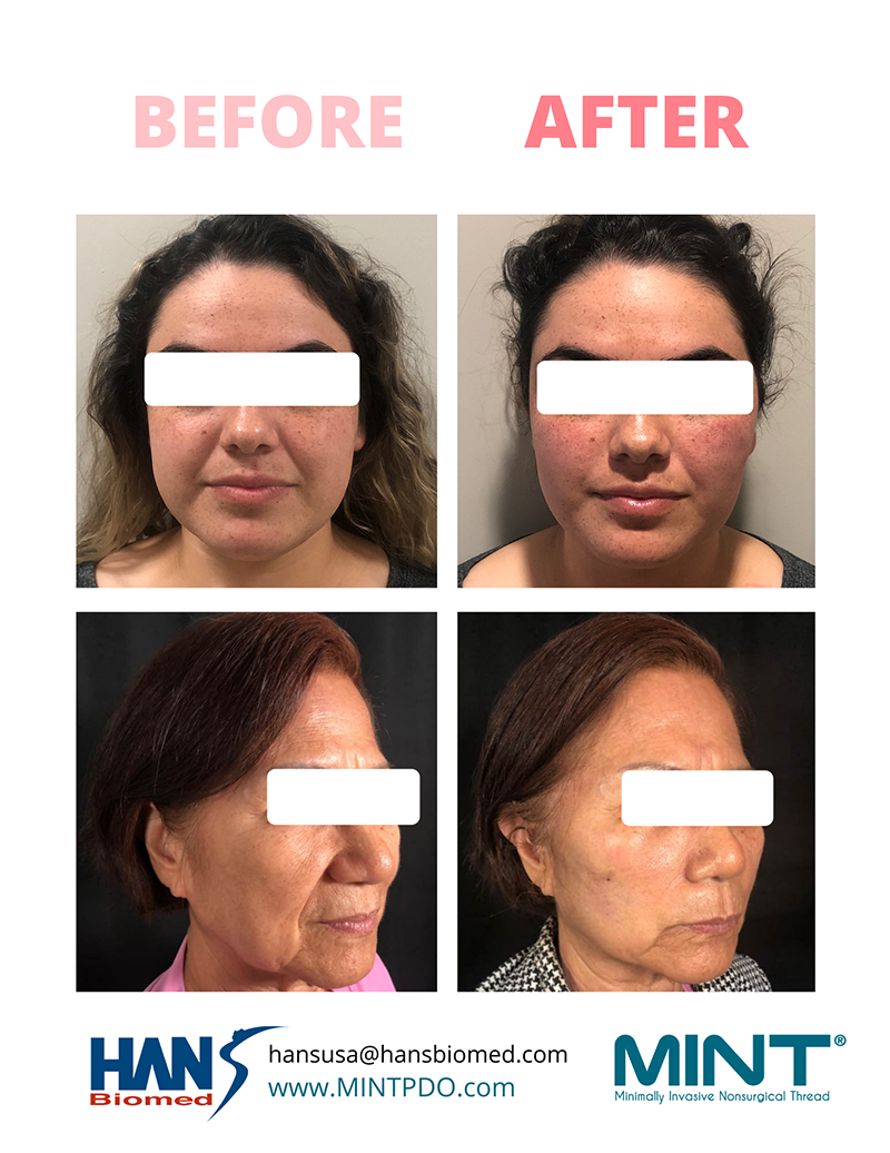 Before and after Mint PDO thread lift in Beverly Hills