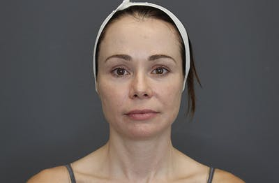 Injectables Gallery - Patient 8487350 - Image 1