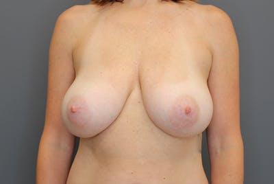 Breast Reduction Gallery - Patient 9863613 - Image 1