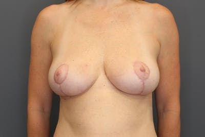 Breast Reduction Gallery - Patient 9863613 - Image 2