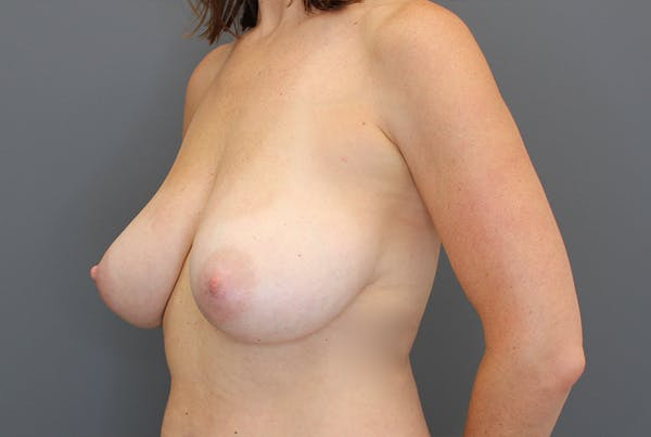 Breast Reduction Gallery - Patient 9863613 - Image 3