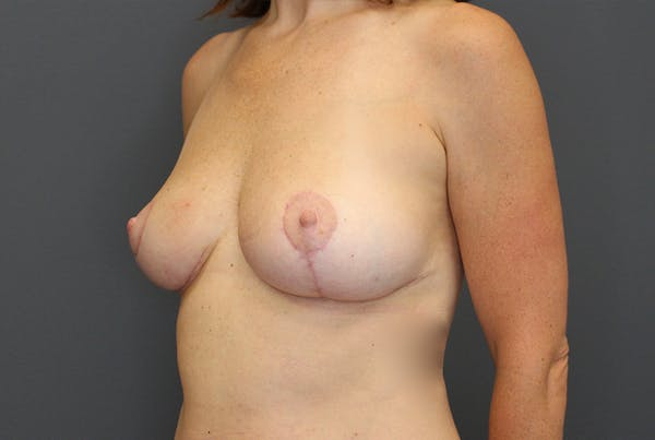 Breast Reduction Gallery - Patient 9863613 - Image 4
