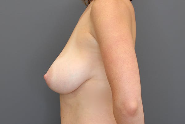 Breast Reduction Gallery - Patient 9863613 - Image 5