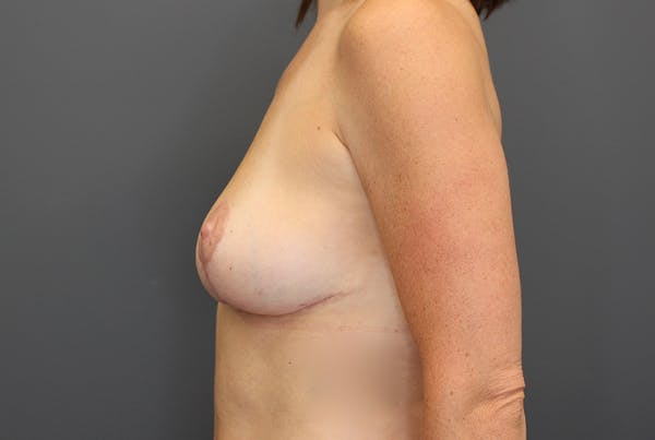 Breast Reduction Gallery - Patient 9863613 - Image 6