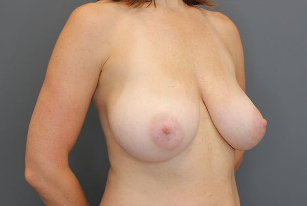 Breast Reduction Gallery - Patient 9863613 - Image 7