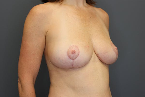 Breast Reduction Gallery - Patient 9863613 - Image 8