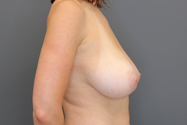 Breast Reduction Gallery - Patient 9863613 - Image 9