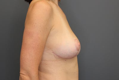 Breast Reduction Gallery - Patient 9863613 - Image 10