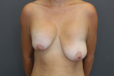 Breast Augmentation Revision Gallery - Patient 9863628 - Image 1