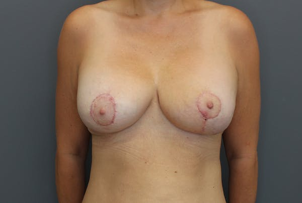 Breast Augmentation Revision Gallery - Patient 9863628 - Image 2