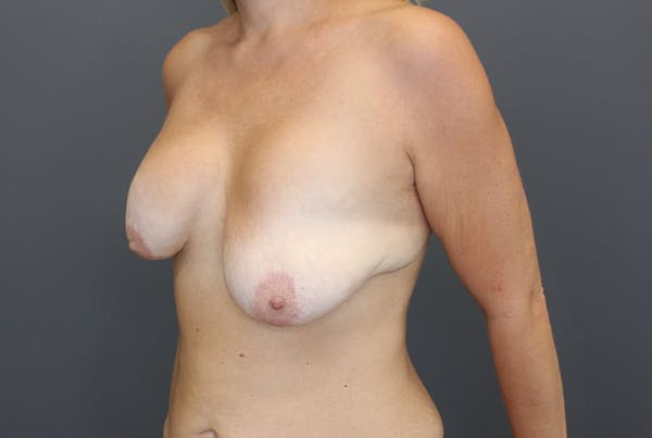 Breast Augmentation Revision Gallery - Patient 9863628 - Image 3