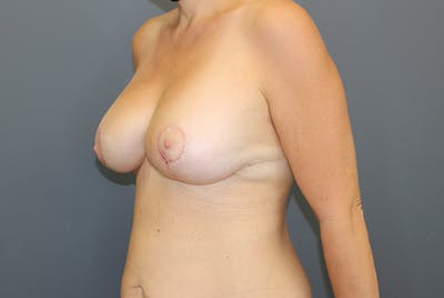 Breast Augmentation Revision Gallery - Patient 9863628 - Image 4