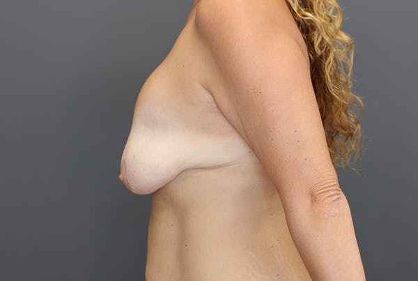 Breast Augmentation Revision Gallery - Patient 9863628 - Image 5