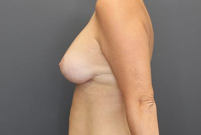 Breast Augmentation Revision Gallery - Patient 9863628 - Image 6