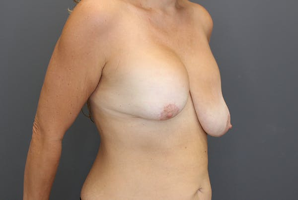 Breast Augmentation Revision Gallery - Patient 9863628 - Image 7